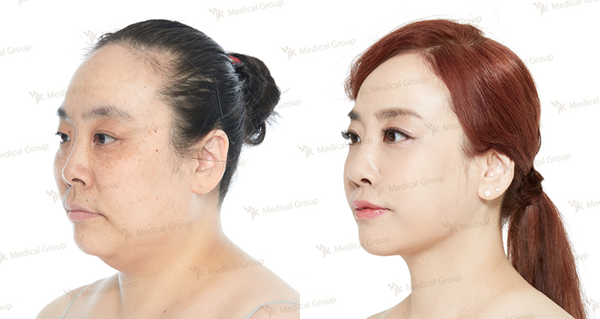 Buccal fat Removal, Zygoma Reduction, Nose Surgery